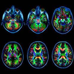Расшифровка заключения МРТ головного мозга