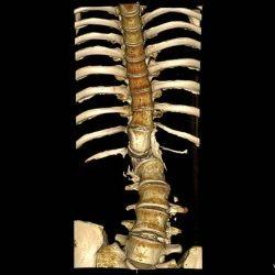 МРТ костей
