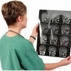 Расшифровка МРТ, КТ снимков